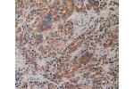 Immunohistochemistry (Paraffin-embedded Sections) (IHC (p)) image for anti-Prolactin Receptor (PRLR) (AA 25-234) antibody (ABIN2921696)