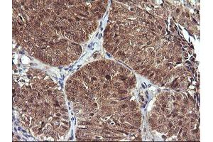 Image no. 6 for anti-D-Dopachrome Tautomerase (DDT) antibody (ABIN1497795)