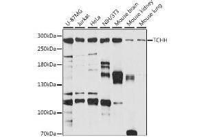 Image no. 1 for anti-Trichohyalin (TCHH) antibody (ABIN6717371)