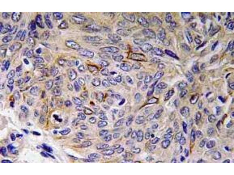 Image no. 2 for anti-Interleukin 32 (IL32) antibody (ABIN498668)