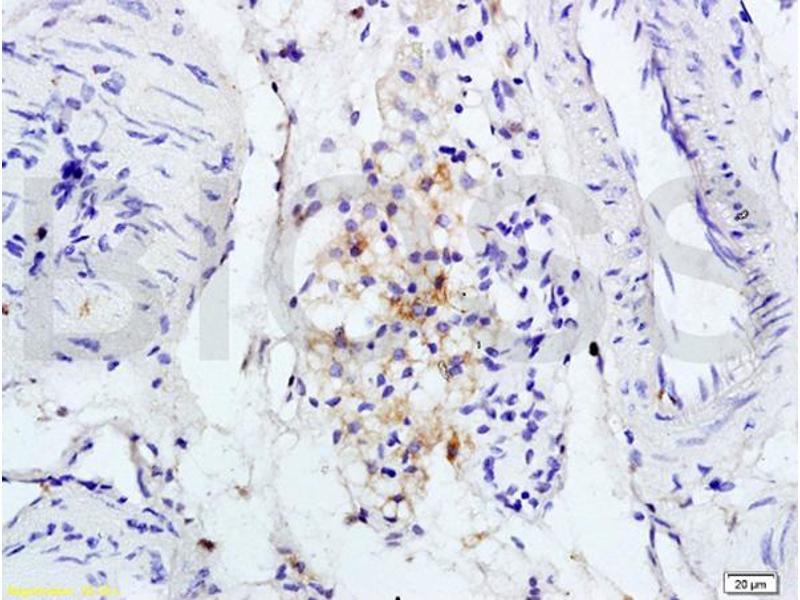 Immunohistochemistry (IHC) image for anti-Interleukin 1 Receptor, Type I (IL1R1) (AA 510-545) antibody (ABIN747743)