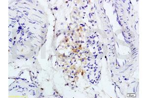 Immunohistochemistry (IHC) image for anti-Interleukin 1 Receptor, Type I (IL1R1) (AA 510-545) antibody (ABIN747743)