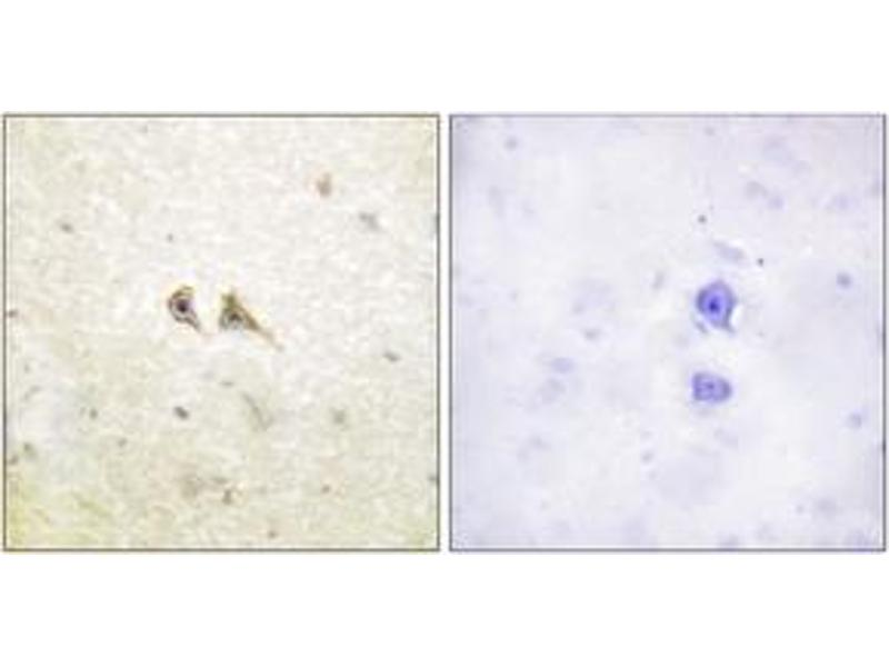 Immunohistochemistry (Paraffin-embedded Sections) (IHC (p)) image for anti-FASL antibody (Fas Ligand (TNF Superfamily, Member 6)) (ABIN1533270)
