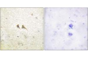 Immunohistochemistry (Paraffin-embedded Sections) (IHC (p)) image for anti-Fas Ligand (TNF Superfamily, Member 6) (FASL) (AA 101-150) antibody (ABIN1533270)