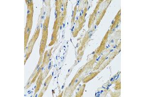 Immunohistochemistry (Paraffin-embedded Sections) (IHC (p)) image for anti-Ganglioside-Induced Differentiation-Associated Protein 1 (GDAP1) antibody (ABIN2969597)