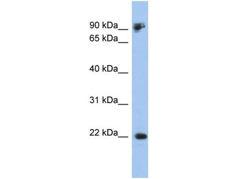 Western Blotting (WB) image for anti-Cadherin 1, Type 1, E-Cadherin (Epithelial) (CDH1) (Middle Region) antibody (ABIN2784498)