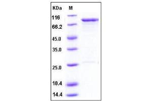 image for Oxidative-Stress Responsive 1 (OXSR1) (full length), (AA 1-527) protein (GST tag) (ABIN2003309)