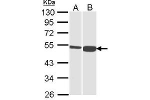 Western Blotting (WB) image for anti-Dihydrolipoamide Branched Chain Transacylase E2 (DBT) (AA 11-247) antibody (ABIN556431)