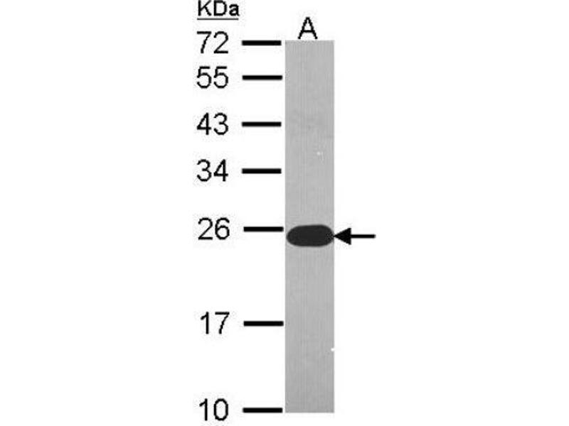 Western Blotting (WB) image for anti-FADD antibody (Fas (TNFRSF6)-Associated Via Death Domain) (Center) (ABIN4310044)