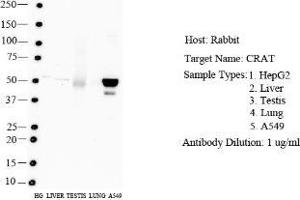 Western Blotting (WB) image for anti-Carnitine O-Acetyltransferase (CRAT) (N-Term) antibody (ABIN4265004)