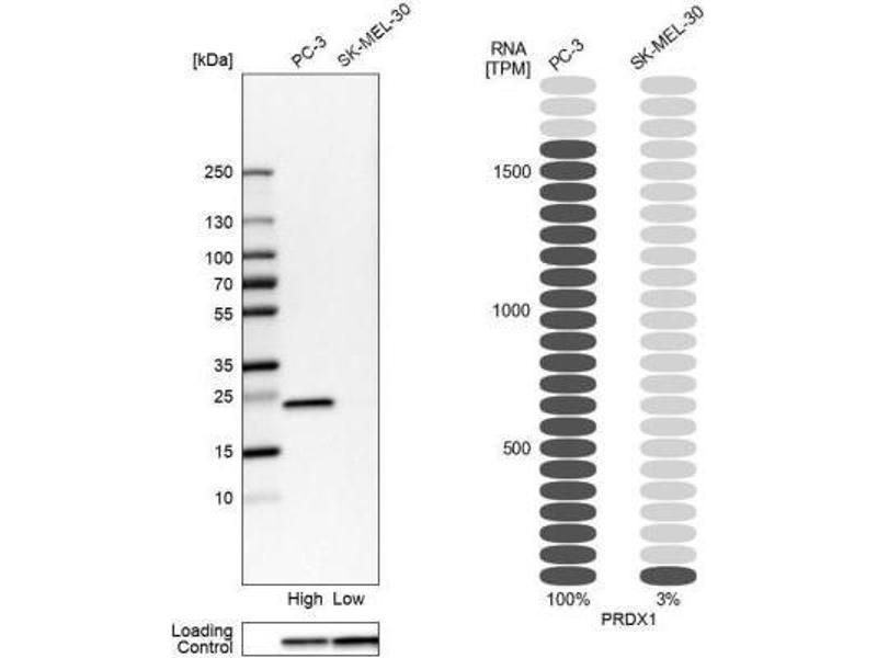 Western Blotting (WB) image for anti-Peroxiredoxin 1 (PRDX1) antibody (ABIN4344918)