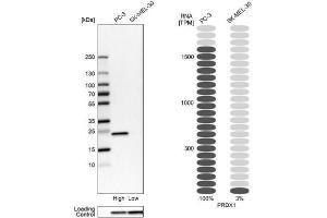 Western Blotting (WB) image for anti-Peroxiredoxin 1 (PRDX1) antibody (ABIN4344918)