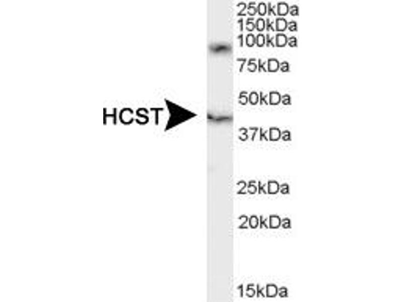 Western Blotting (WB) image for anti-Hematopoietic Cell Signal Transducer (HCST) (C-Term), (Isoform 1), (Isoform 2) antibody (ABIN188679)