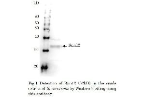 Western Blotting (WB) image for anti-Proteasome (Prosome, Macropain) 26S Subunit, Non-ATPase, 8 (PSMD8) antibody (ABIN2452112)