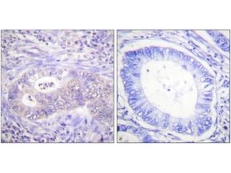 Immunohistochemistry (IHC) image for anti-6-phosphofructo-2-Kinase/fructose-2,6-Biphosphatase 2 (PFKFB2) (AA 451-500), (pSer483) antibody (ABIN1531479)