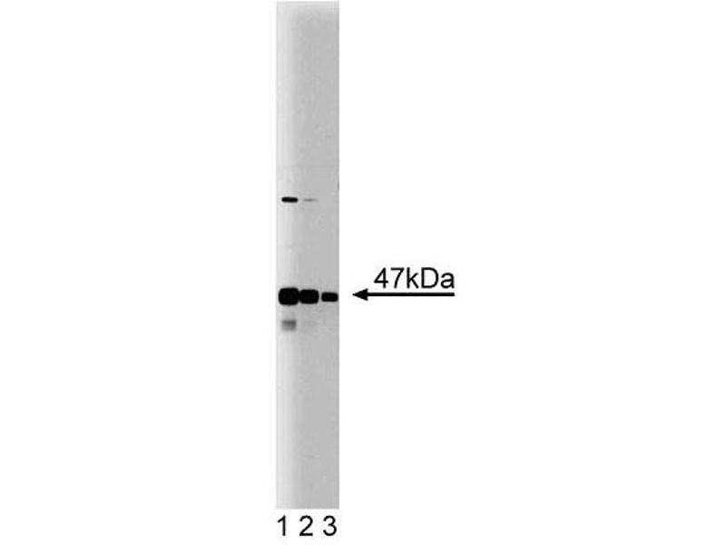 Western Blotting (WB) image for anti-Sjogren Syndrome Antigen B (SSB) (AA 179-289) antibody (ABIN968242)
