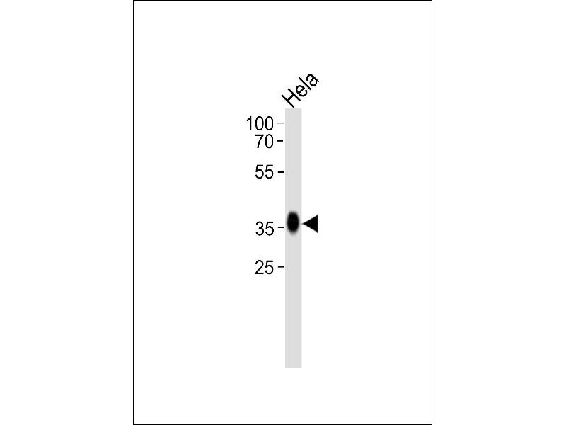 Western Blotting (WB) image for anti-Folate Receptor 1 (Adult) (FOLR1) (AA 33-68), (N-Term) antibody (ABIN654650)