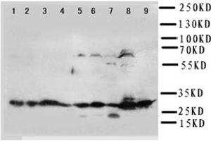 Western Blotting (WB) image for anti-Kallikrein 6 antibody (KLK6) (C-Term) (ABIN2487455)