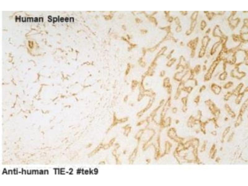 Immunohistochemistry (IHC) image for anti-TEK antibody (TEK Tyrosine Kinase, Endothelial) (ABIN449628)