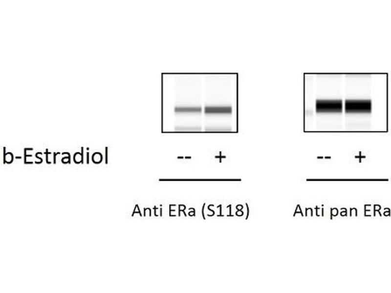 Estrogen Receptor 1 (ESR1) ELISA Kit (3)
