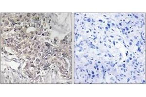 Image no. 2 for anti-Cytochrome P450, Family 4, Subfamily Z, Polypeptide 1 (CYP4Z1) (AA 71-120) antibody (ABIN1534401)