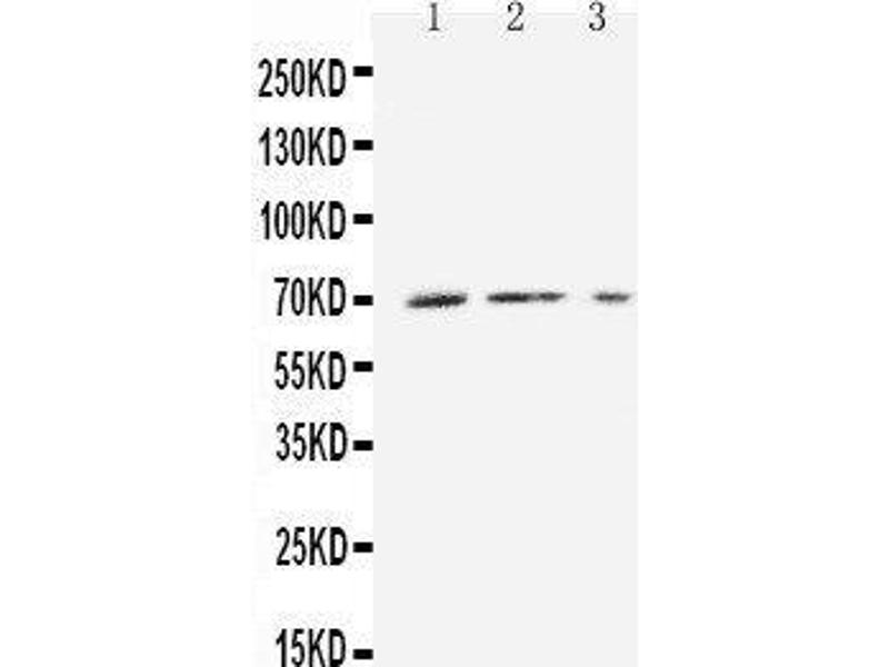Western Blotting (WB) image for anti-Solute Carrier Family 16, Member 1 (Monocarboxylic Acid Transporter 1) (SLC16A1) (AA 236-254), (Middle Region) antibody (ABIN3042846)