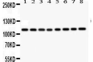 Image no. 1 for anti-Nitric Oxide Synthase 2, Inducible (NOS2) (AA 1110-1124), (C-Term) antibody (ABIN3044372)