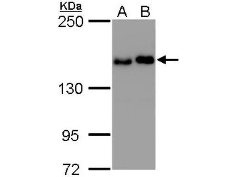 Western Blotting (WB) image for anti-HER2 antibody (V-Erb-B2 erythroblastic Leukemia Viral Oncogene Homolog 2, Neuro/glioblastoma Derived Oncogene Homolog (Avian)) (ABIN4270350)