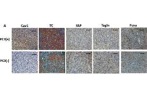 Image no. 15 for anti-Proliferating Cell Nuclear Antigen (PCNA) (Center) antibody (ABIN2854788)
