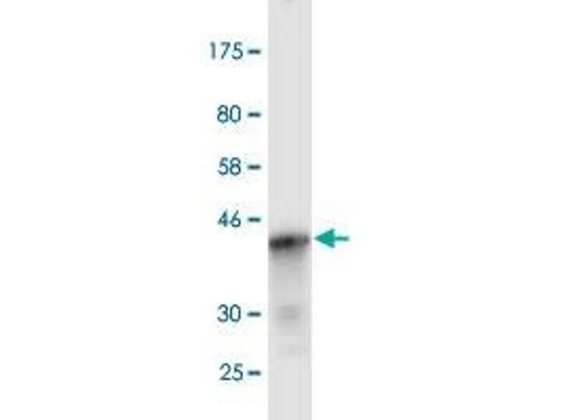 Image no. 2 for anti-Mediterranean Fever (MEFV) (AA 1-110) antibody (ABIN517844)