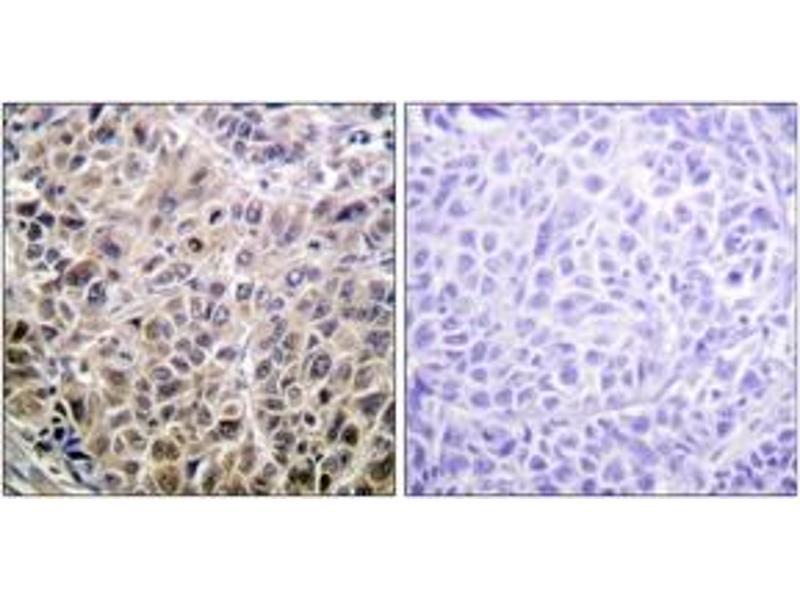 Immunohistochemistry (IHC) image for anti-Death-Associated Protein Kinase 1 (DAPK1) (AA 274-323) antibody (ABIN1532590)
