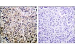 Immunohistochemistry (IHC) image for anti-Death-Associated Protein Kinase 1 (DAPK1) (AA 274-323) antibody (ABIN1532590)