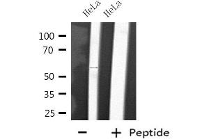 Image no. 2 for anti-Cytochrome P450, Family 2, Subfamily D, Polypeptide 6 (CYP2D6) antibody (ABIN6258047)