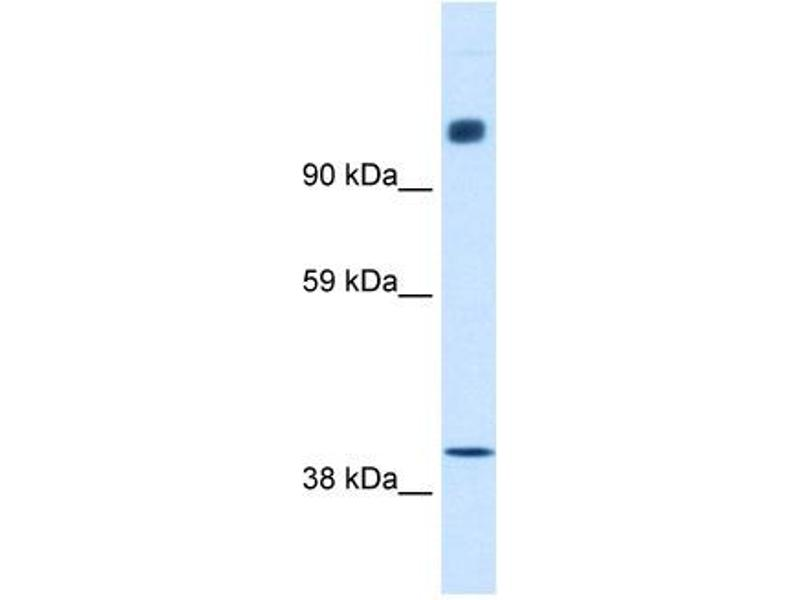 Western Blotting (WB) image for anti-Nuclear Receptor Co-Repressor 1 (NCOR1) (N-Term) antibody (ABIN2779671)