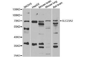Image no. 1 for anti-Solute Carrier Family 23 (Nucleobase Transporters), Member 2 (SLC23A2) antibody (ABIN2559957)