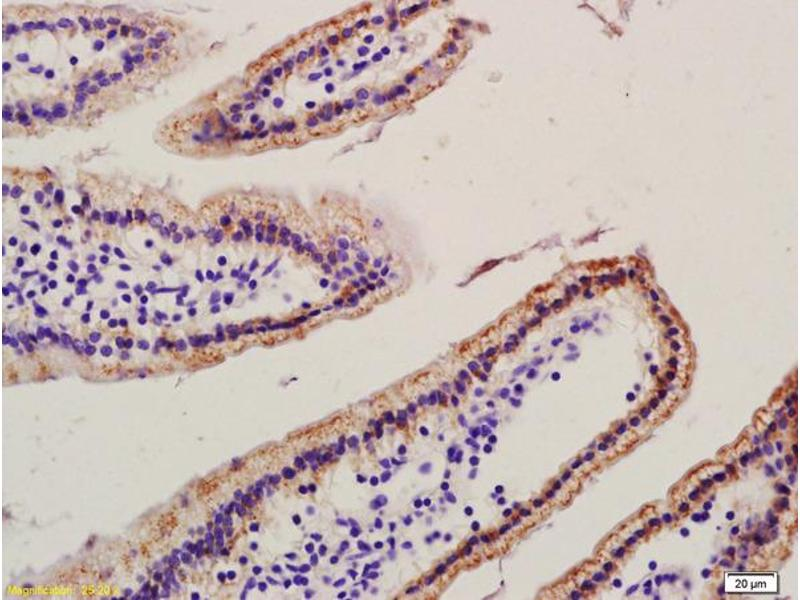 Immunohistochemistry (IHC) image for anti-Ras-Related C3 Botulinum Toxin Substrate 1 (Rho Family, Small GTP Binding Protein Rac1) (RAC1) (AA 115-145) antibody (ABIN763211)