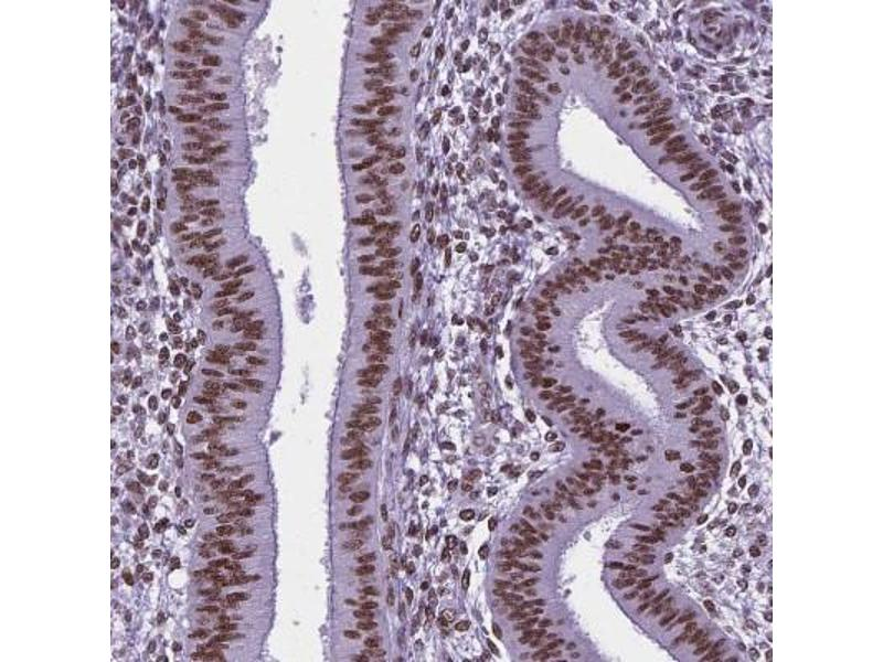 Immunohistochemistry (Paraffin-embedded Sections) (IHC (p)) image for anti-RE1-Silencing Transcription Factor (REST) antibody (ABIN4340704)