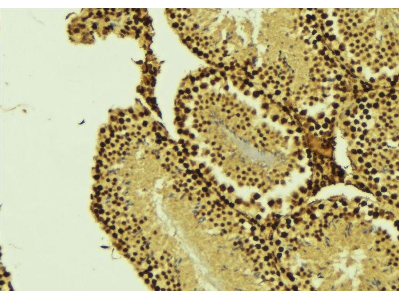 Immunohistochemistry (IHC) image for anti-Caspase Recruitment Domain Family, Member 8 (CARD8) antibody (ABIN6260461)