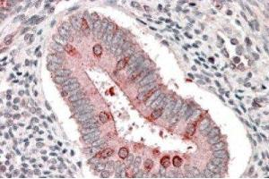 Immunohistochemistry (Paraffin-embedded Sections) (IHC (p)) image for anti-TSC1 antibody (Tuberous Sclerosis 1) (C-Term) (ABIN251283)