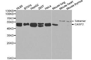 Western Blotting (WB) image for anti-Caspase 2 antibody (Caspase 2, Apoptosis-Related Cysteine Peptidase) (ABIN2561574)