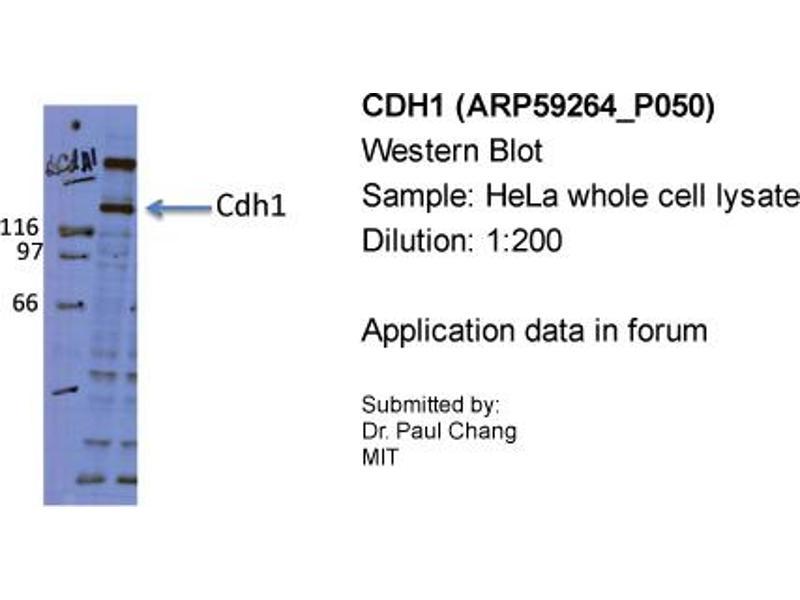 Western Blotting (WB) image for anti-Cadherin 1, Type 1, E-Cadherin (Epithelial) (CDH1) (Middle Region) antibody (ABIN2787999)