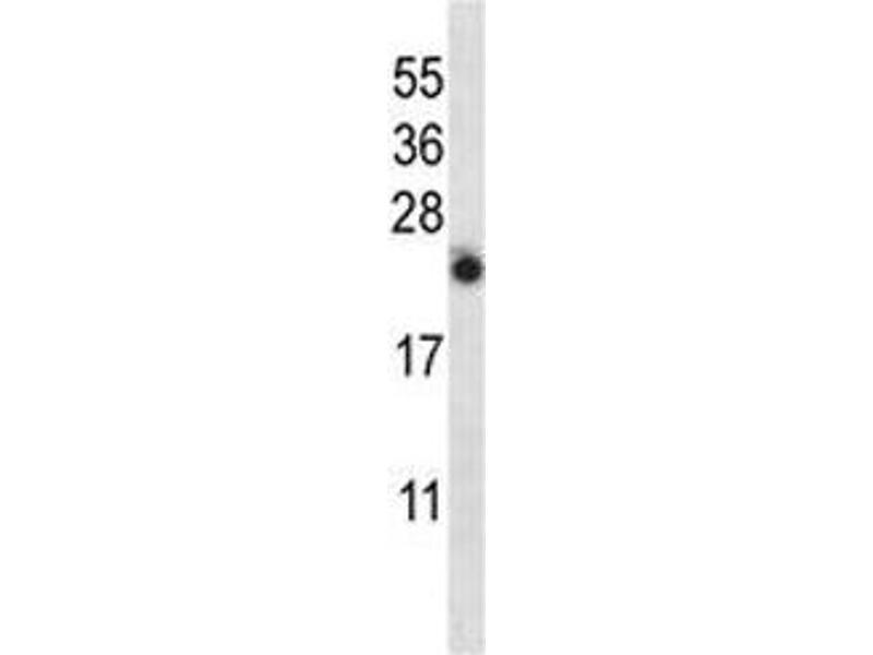 Western Blotting (WB) image for anti-Interleukin 13 (IL13) (AA 118-146) antibody (ABIN3031449)