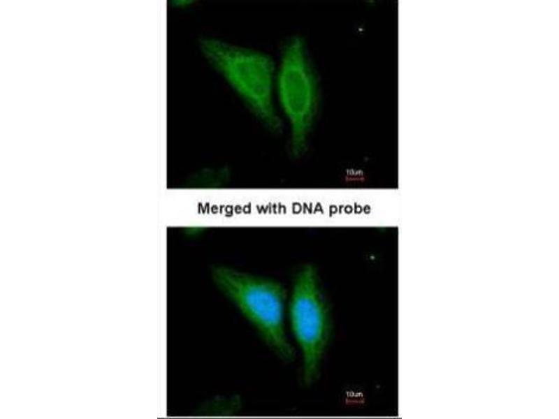 Immunofluorescence (IF) image for anti-Epidermal Growth Factor Receptor (EGFR) (N-Term) antibody (ABIN2854848)