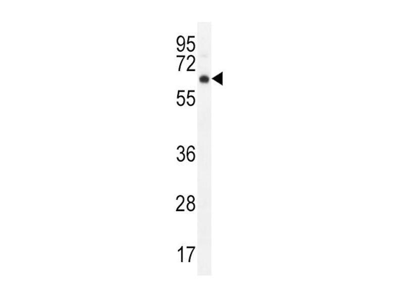 Western Blotting (WB) image for anti-AKT antibody (V-Akt Murine Thymoma Viral Oncogene Homolog 1) (C-Term) (ABIN2159031)