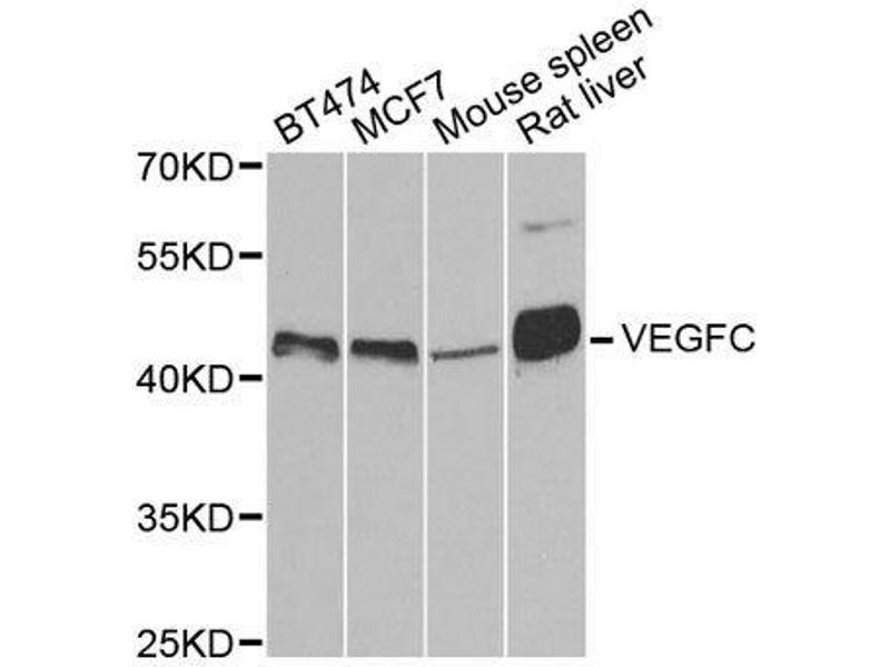 Western Blotting (WB) image for anti-Vascular Endothelial Growth Factor C (VEGFC) antibody (ABIN3023364)