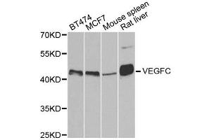 Image no. 2 for anti-Vascular Endothelial Growth Factor C (VEGFC) antibody (ABIN3023364)