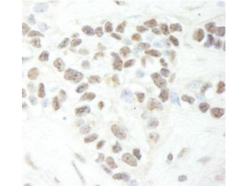 Immunohistochemistry (Paraffin-embedded Sections) (IHC (p)) image for anti-Mediator Complex Subunit 12 (MED12) (C-Term) antibody (ABIN250749)