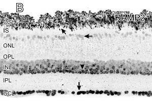 Image no. 3 for anti-Receptor (G Protein-Coupled) Activity Modifying Protein 2 (RAMP2) (C-Term) antibody (ABIN2856615)