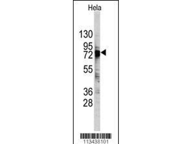 Western Blotting (WB) image for anti-DEAD (Asp-Glu-Ala-Asp) Box Polypeptide 3, X-Linked (DDX3X) (AA 456-485), (C-Term) antibody (ABIN388291)