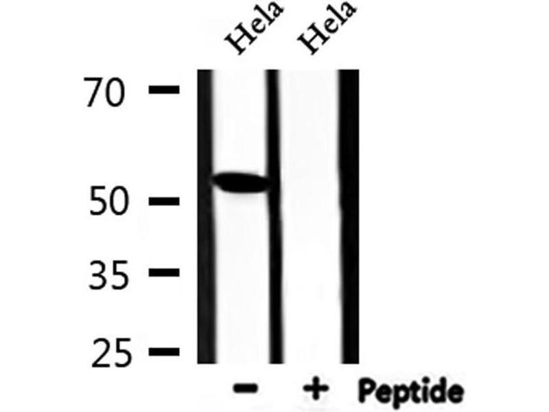 Western Blotting (WB) image for anti-TIN2 (TINF2) antibody (ABIN6265586)